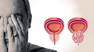 Prostatitis Stage Remissions